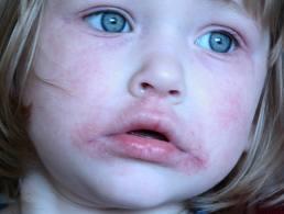 perioralis gyerek1